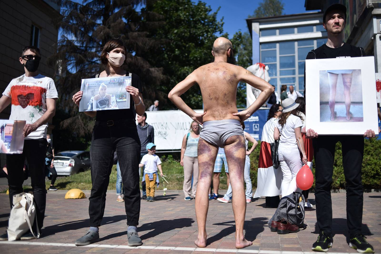 (FILES) In this file photo taken on August 15, 2020 a man (C) shows his injuries as other Belarus opposition supporters hold pictures of beaten people, in central Minsk, during a protest rally near the Pushkinskaya metro station where Alexander Taraikovsky, a 34-year-old protester died amid the clashes protesting the election results on August 10. - Ten Belarusians have filed a criminal complaint in Germany against President Alexander Lukashenko and members of his regime for crimes against humanity during a brutal post-election crackdown, lawyers representing them said on Mai 5, 2021.